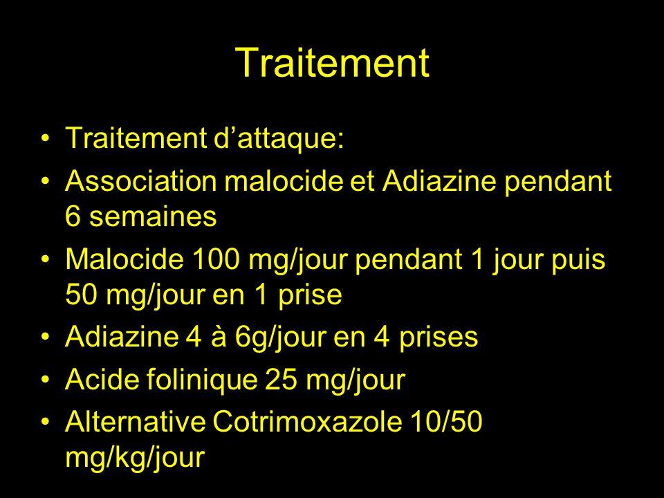 Traitement Traitements associés: Traitement anti épileptique : Dépakine ou phénytoine Alcalinisation des urines (bicarbonate de Sodium, objectif : pH urinaire 8) Si hypertension intra crânienne : Prednisolone 40 mgx4/jour