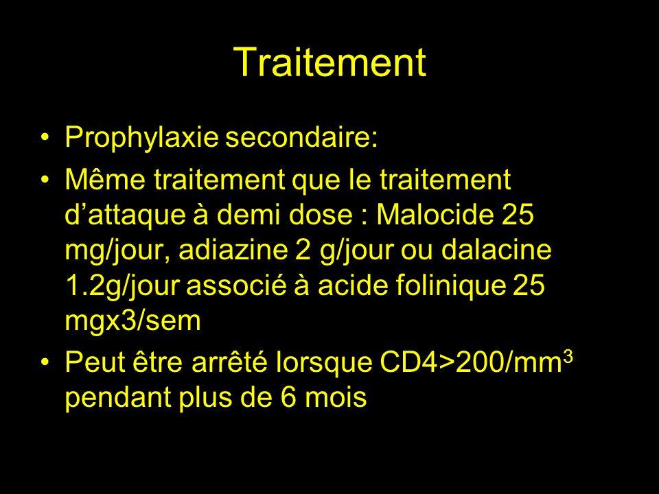 Surveillance Efficacité du traitement Clinique régression de la symptomatologie neurologique en 7 à 15 jours Scanner à J15.