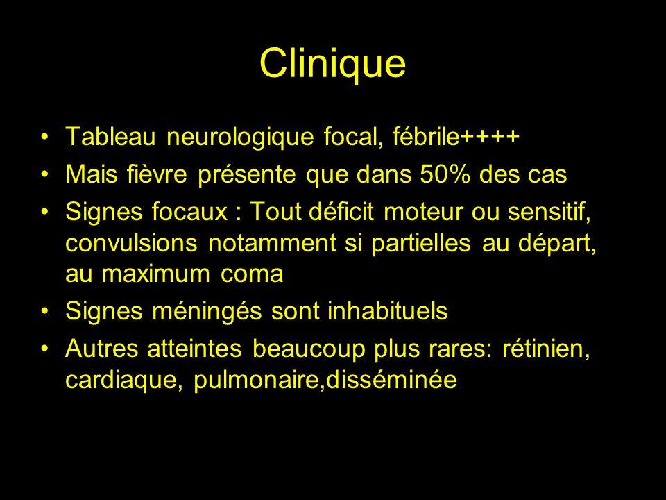 Moyens diagnostiques Scanner cérébral sans et avec injection Abcès prenant le contraste en anneau associés à un œdème périlésionnel, souvent multiples Sérologie toxoplasmose positive en Ig G Efficacité du traitement présomptif au bout de 14 jours