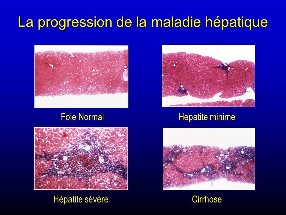 La progression de la maladie hépatique Foie NormalHepatite minime Hépatite sévèreCirrhose