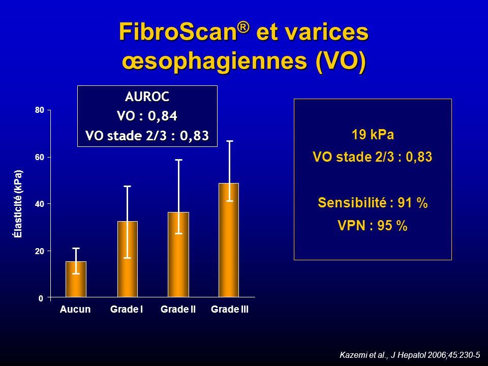 FibroScan ® et varices œsophagiennes (VO) AUROC VO : 0,84 VO stade 2/3 : 0,83 19 kPa VO stade 2/3 : 0,83 Sensibilité : 91 % VPN : 95 % Kazemi et al.,