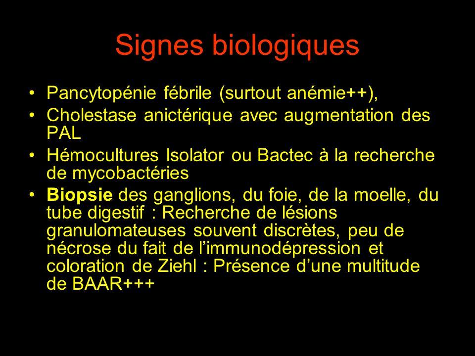 Signes biologiques Pancytopénie fébrile (surtout anémie++), Cholestase anictérique avec augmentation des PAL Hémocultures Isolator ou Bactec à la rech