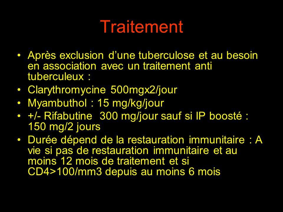 Traitement Après exclusion dune tuberculose et au besoin en association avec un traitement anti tuberculeux : Clarythromycine 500mgx2/jour Myambuthol