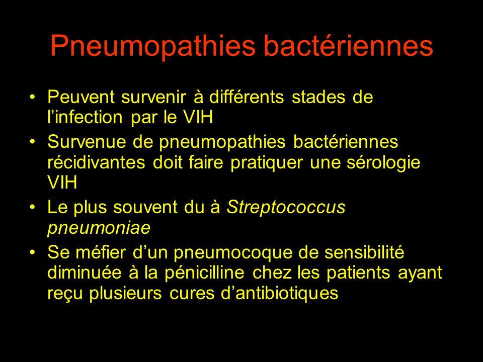 Pneumopathies bactériennes Début brutal avec fièvre élevée, frissons, existence dun foyer auscultatoire de crépitants Radiographie thoracique : Opacités alvéolaires ou nodulaires, systématisées Germes en cause : Streptococcus pneumoniae +++, Haemophilus influenzae, plus rarement S.