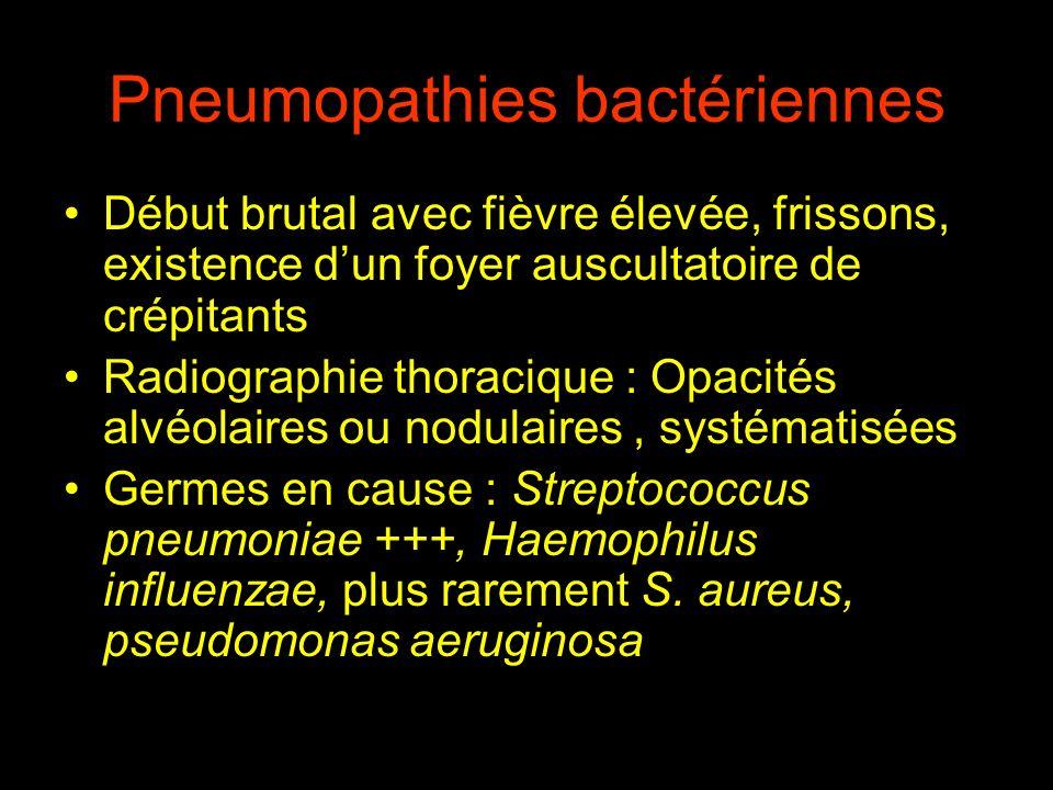 Pneumopathies bactériennes Début brutal avec fièvre élevée, frissons, existence dun foyer auscultatoire de crépitants Radiographie thoracique : Opacit