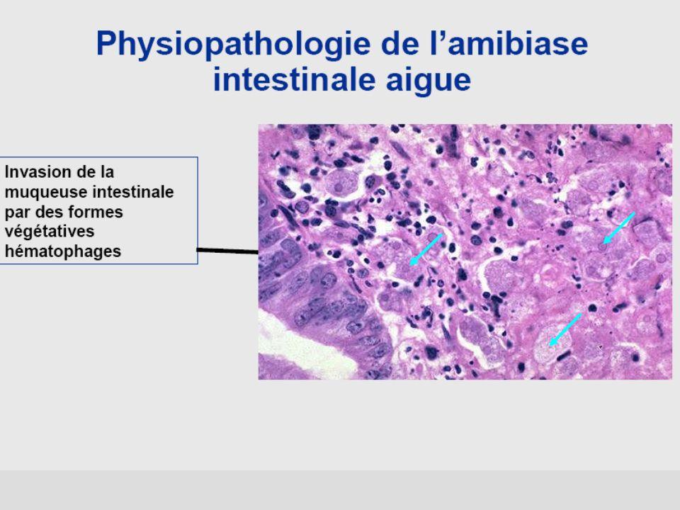 Cyclosporose : diagnostic Oocyste rond Paroi épaisse Contenu granuleux Réfringent 8 à 10 µm Coloration de ziehl Auto fluorescence en UV Examen direct