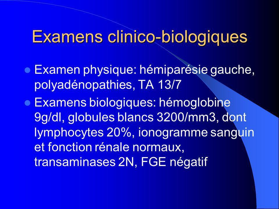 Examens clinico-biologiques Examen physique: hémiparésie gauche, polyadénopathies, TA 13/7 Examens biologiques: hémoglobine 9g/dl, globules blancs 3200/mm3, dont lymphocytes 20%, ionogramme sanguin et fonction rénale normaux, transaminases 2N, FGE négatif