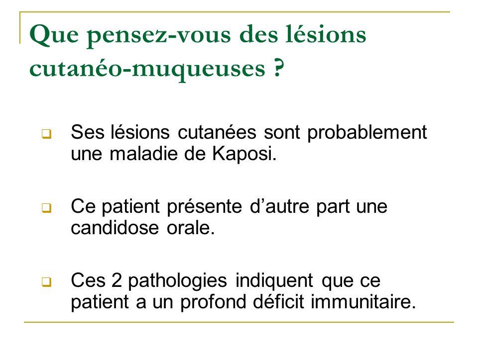 Que pensez-vous des lésions cutanéo-muqueuses ? Ses lésions cutanées sont probablement une maladie de Kaposi. Ce patient présente dautre part une cand