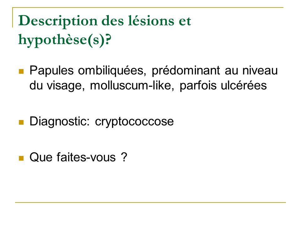 Description des lésions et hypothèse(s)? Papules ombiliquées, prédominant au niveau du visage, molluscum-like, parfois ulcérées Diagnostic: cryptococc