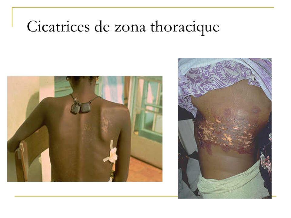 Cicatrices de zona thoracique