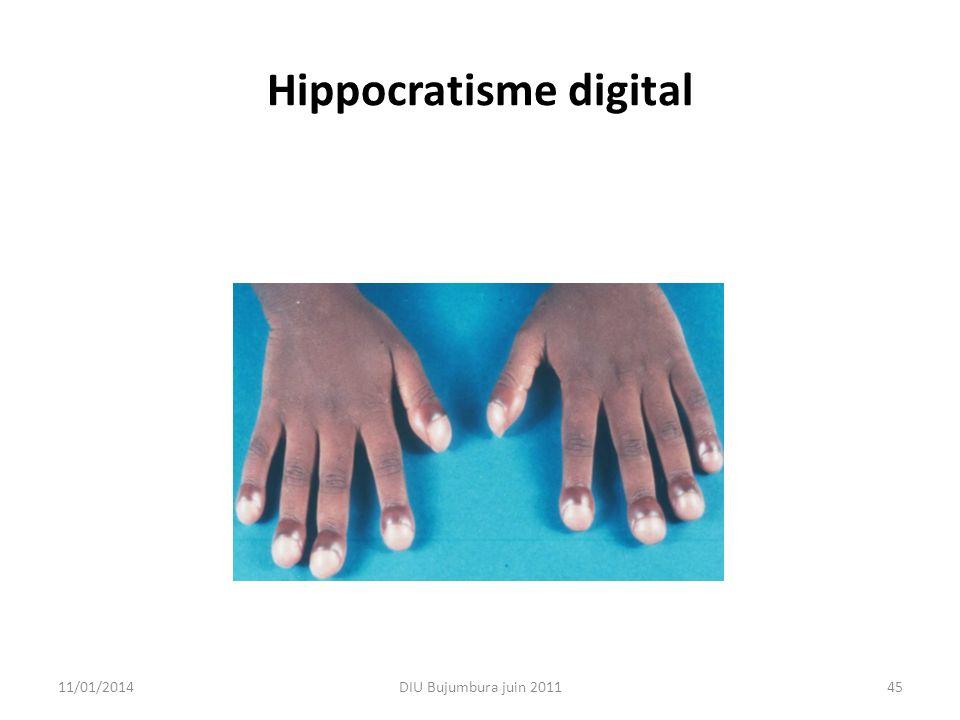 Hippocratisme digital 11/01/2014DIU Bujumbura juin 201145