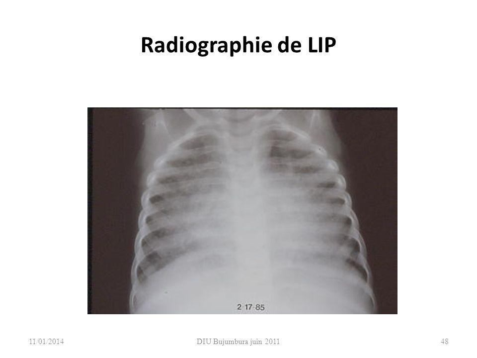 DIU Bujumbura juin 201148 Radiographie de LIP 11/01/2014