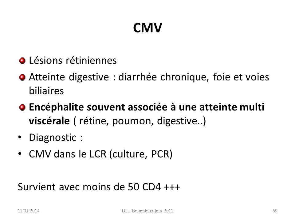 DIU Bujumbura juin 2011 CMV Lésions rétiniennes Atteinte digestive : diarrhée chronique, foie et voies biliaires Encéphalite souvent associée à une at