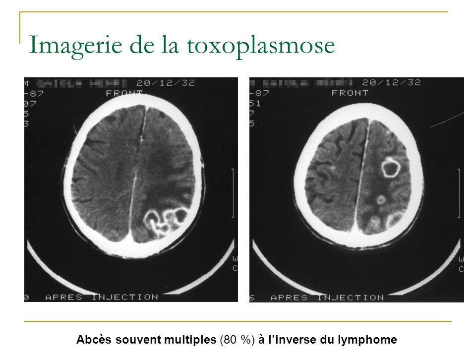 Imagerie de la toxoplasmose Abcès souvent multiples (80 %) à linverse du lymphome