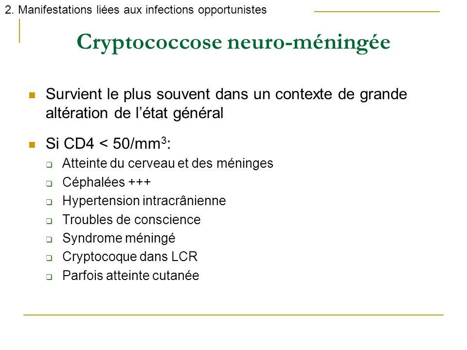 Cryptococcose neuro-méningée Survient le plus souvent dans un contexte de grande altération de létat général Si CD4 < 50/mm 3 : Atteinte du cerveau et