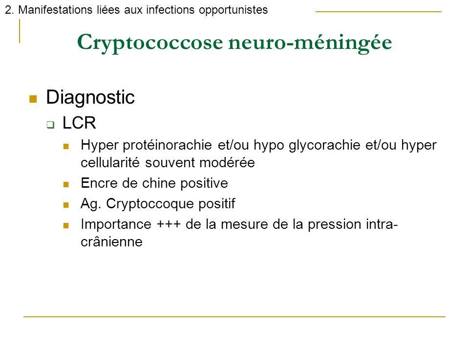 Cryptococcose neuro-méningée 2. Manifestations liées aux infections opportunistes Diagnostic LCR Hyper protéinorachie et/ou hypo glycorachie et/ou hyp