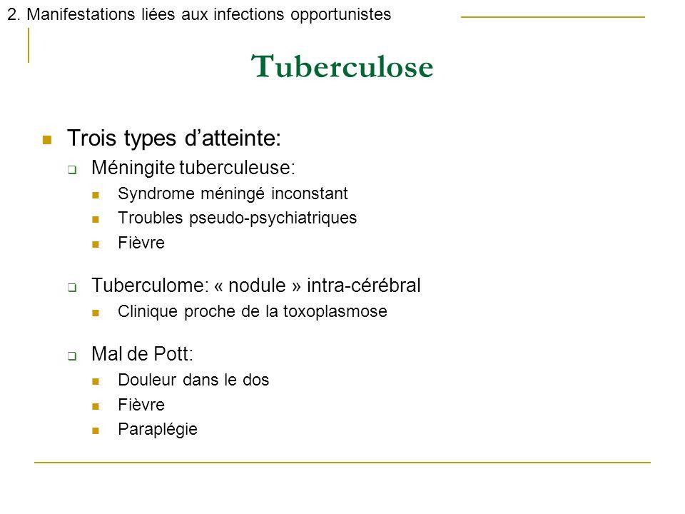 Tuberculose Trois types datteinte: Méningite tuberculeuse: Syndrome méningé inconstant Troubles pseudo-psychiatriques Fièvre Tuberculome: « nodule » i
