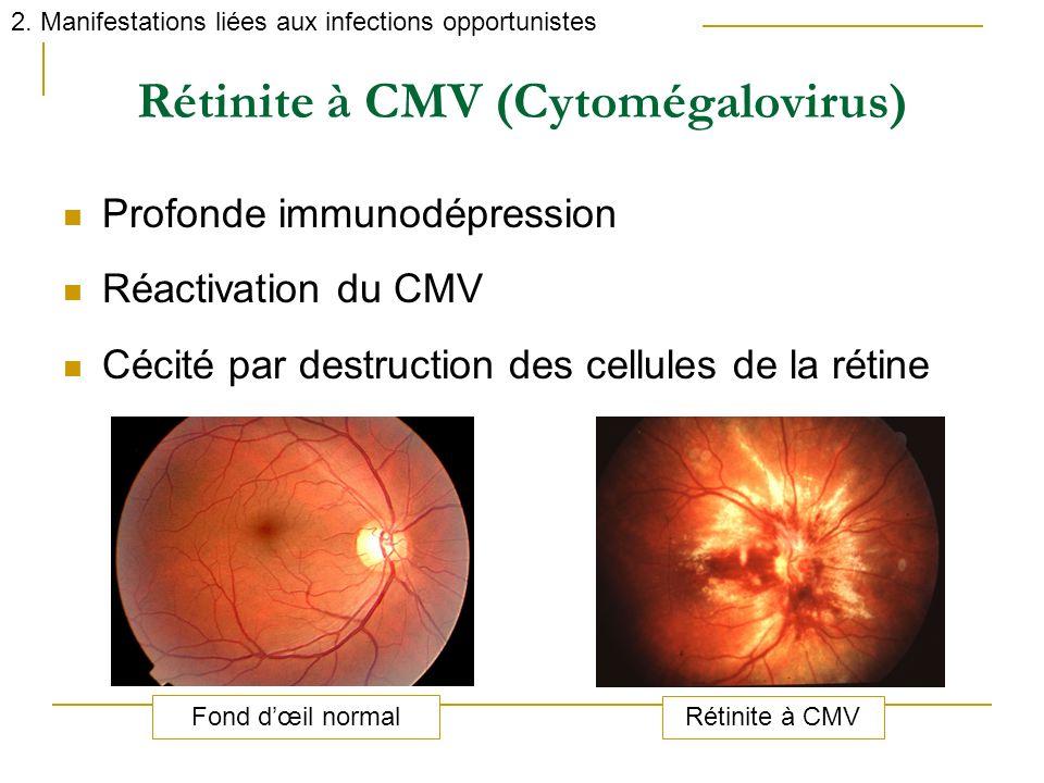 Rétinite à CMV (Cytomégalovirus) Profonde immunodépression Réactivation du CMV Cécité par destruction des cellules de la rétine 2. Manifestations liée