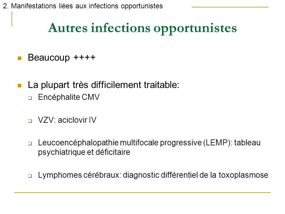 Autres infections opportunistes Beaucoup ++++ La plupart très difficilement traitable: Encéphalite CMV VZV: aciclovir IV Leucoencéphalopathie multifoc