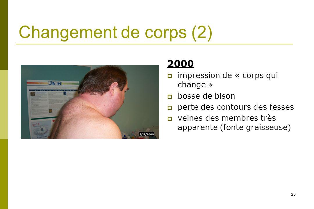 20 Changement de corps (2) 2000 impression de « corps qui change » bosse de bison perte des contours des fesses veines des membres très apparente (fonte graisseuse)
