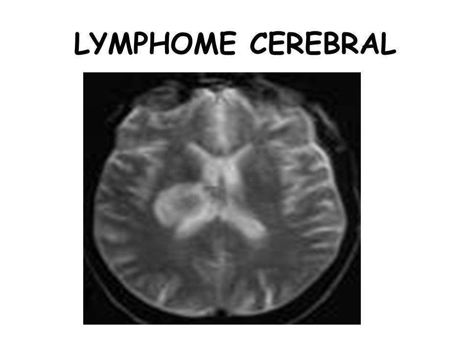LYMPHOME CEREBRAL