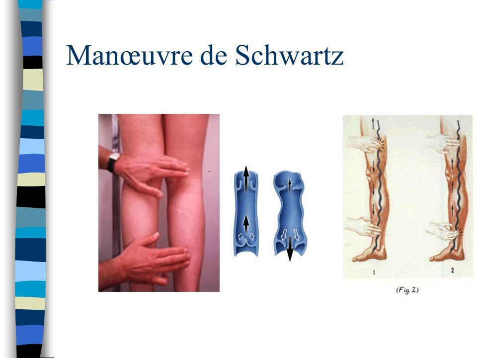 Manœuvre de Schwartz