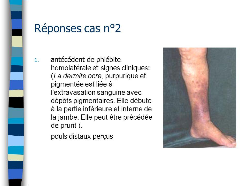 Réponses cas n°2 1. antécédent de phlébite homolatérale et signes cliniques: ( La dermite ocre, purpurique et pigmentée est liée à l'extravasation san