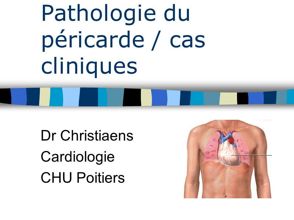 Pathologie du péricarde / cas cliniques Dr Christiaens Cardiologie CHU Poitiers