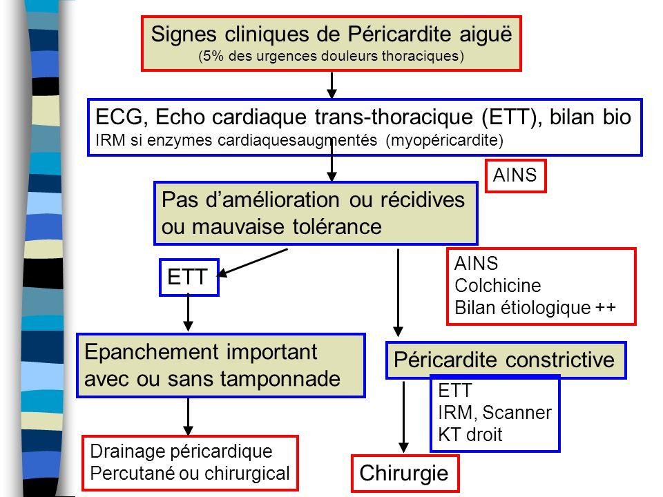 Signes cliniques de Péricardite aiguë (5% des urgences douleurs thoraciques) ECG, Echo cardiaque trans-thoracique (ETT), bilan bio IRM si enzymes card
