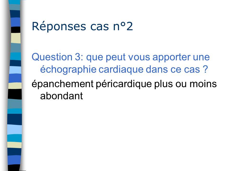 Réponses cas n°2 Question 3: que peut vous apporter une échographie cardiaque dans ce cas ? épanchement péricardique plus ou moins abondant