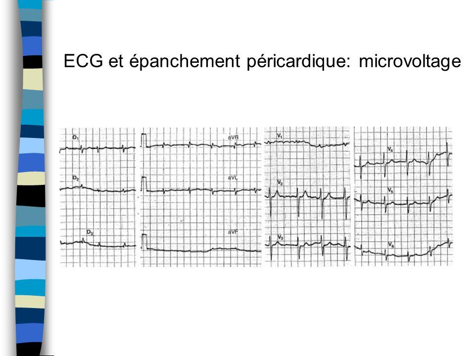 ECG et épanchement péricardique: microvoltage