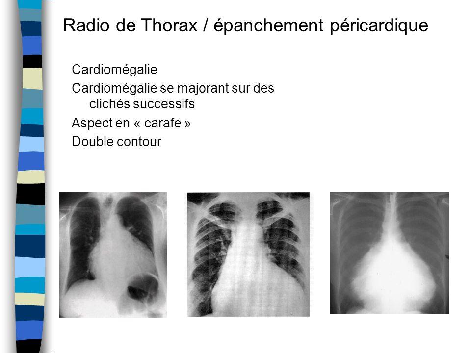 Cardiomégalie Cardiomégalie se majorant sur des clichés successifs Aspect en « carafe » Double contour Radio de Thorax / épanchement péricardique