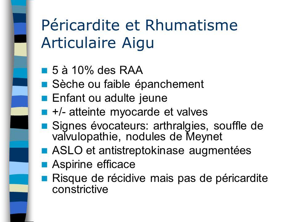 Péricardite et Rhumatisme Articulaire Aigu 5 à 10% des RAA Sèche ou faible épanchement Enfant ou adulte jeune +/- atteinte myocarde et valves Signes é