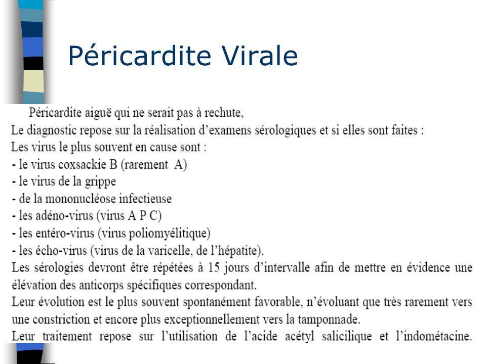Péricardite Virale