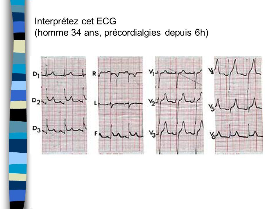 Interprétez cet ECG (homme 34 ans, précordialgies depuis 6h)