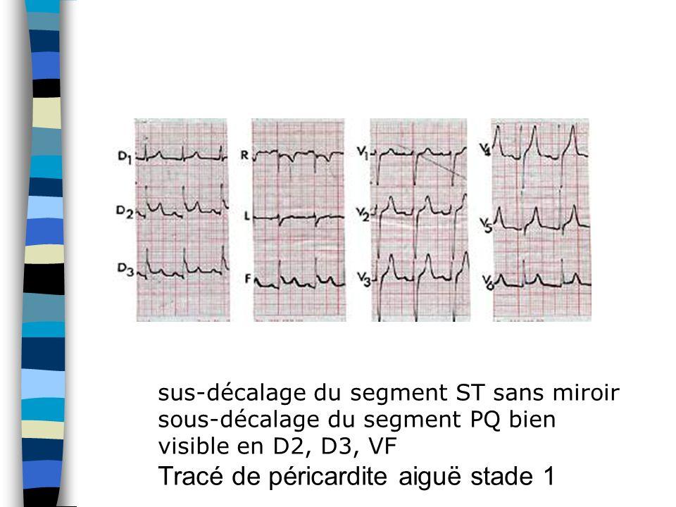 sus-décalage du segment ST sans miroir sous-décalage du segment PQ bien visible en D2, D3, VF Tracé de péricardite aiguë stade 1
