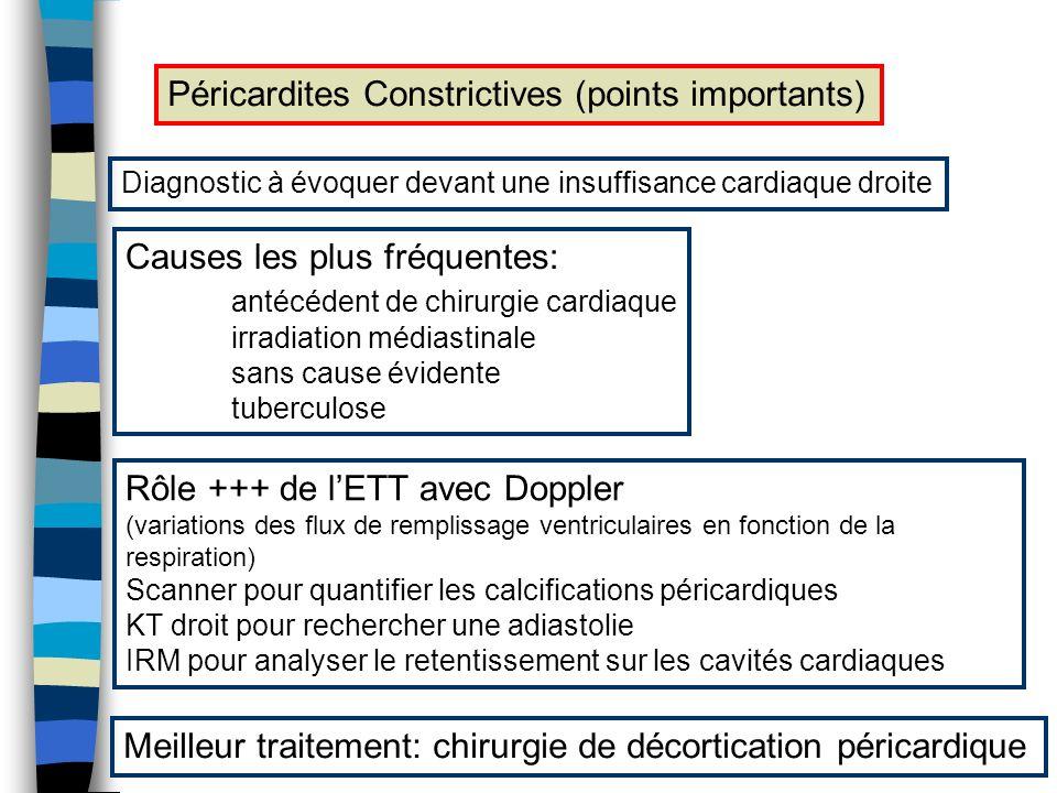 Péricardites Constrictives (points importants) Diagnostic à évoquer devant une insuffisance cardiaque droite Causes les plus fréquentes: antécédent de