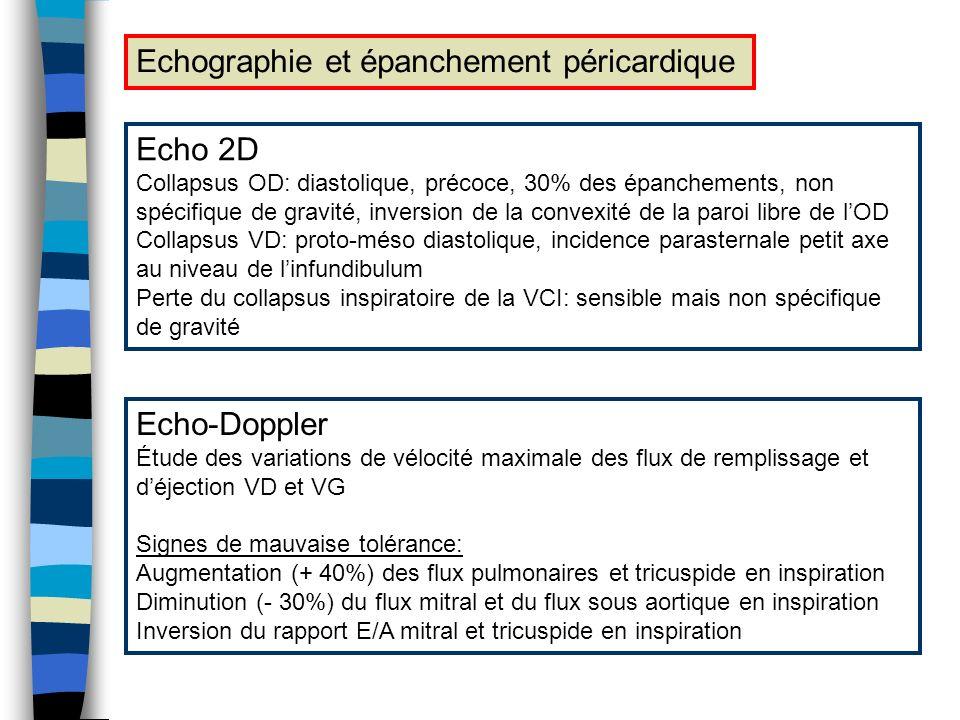 Echographie et épanchement péricardique Echo 2D Collapsus OD: diastolique, précoce, 30% des épanchements, non spécifique de gravité, inversion de la c
