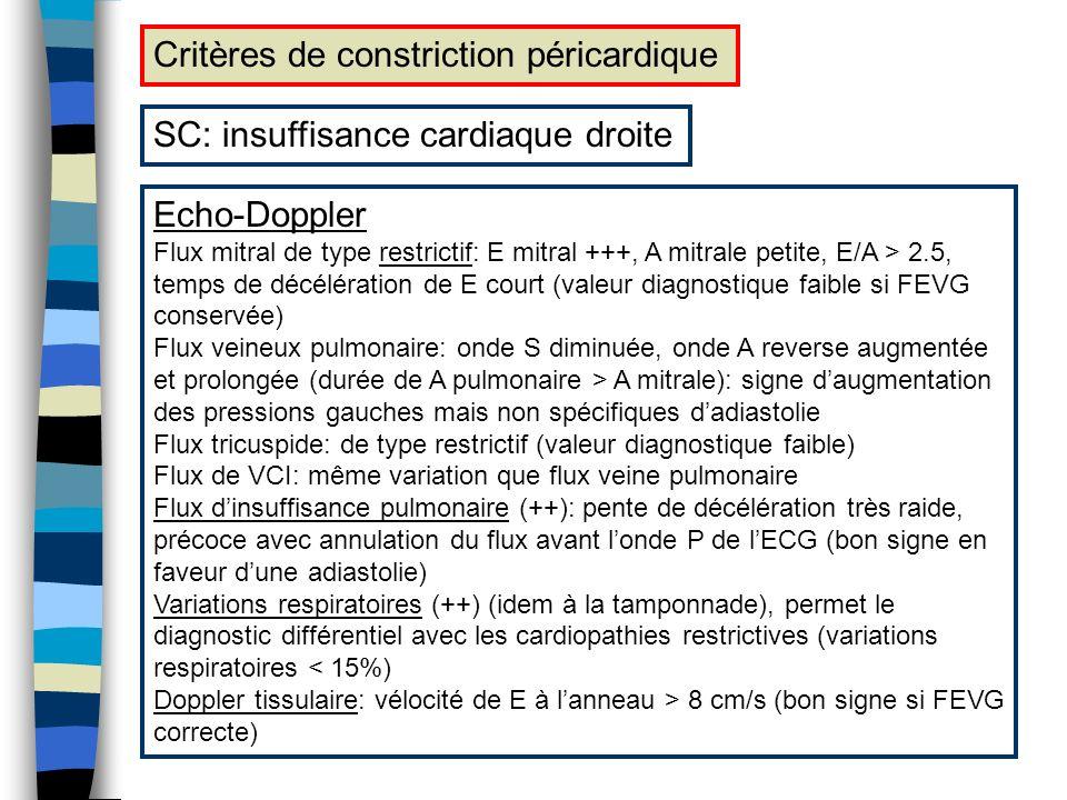 Critères de constriction péricardique SC: insuffisance cardiaque droite Echo-Doppler Flux mitral de type restrictif: E mitral +++, A mitrale petite, E