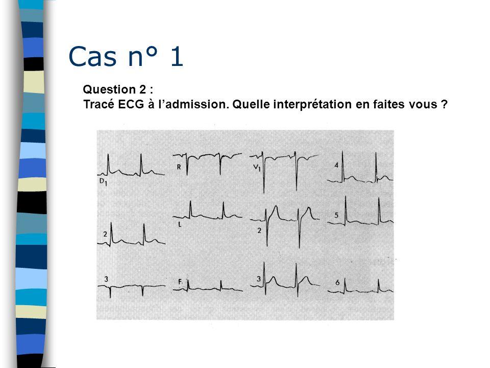 Cas n° 1 Question 2 : Tracé ECG à ladmission. Quelle interprétation en faites vous ?
