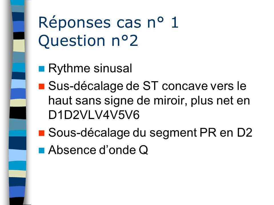 Réponses cas n° 1 Question n°2 Rythme sinusal Sus-décalage de ST concave vers le haut sans signe de miroir, plus net en D1D2VLV4V5V6 Sous-décalage du