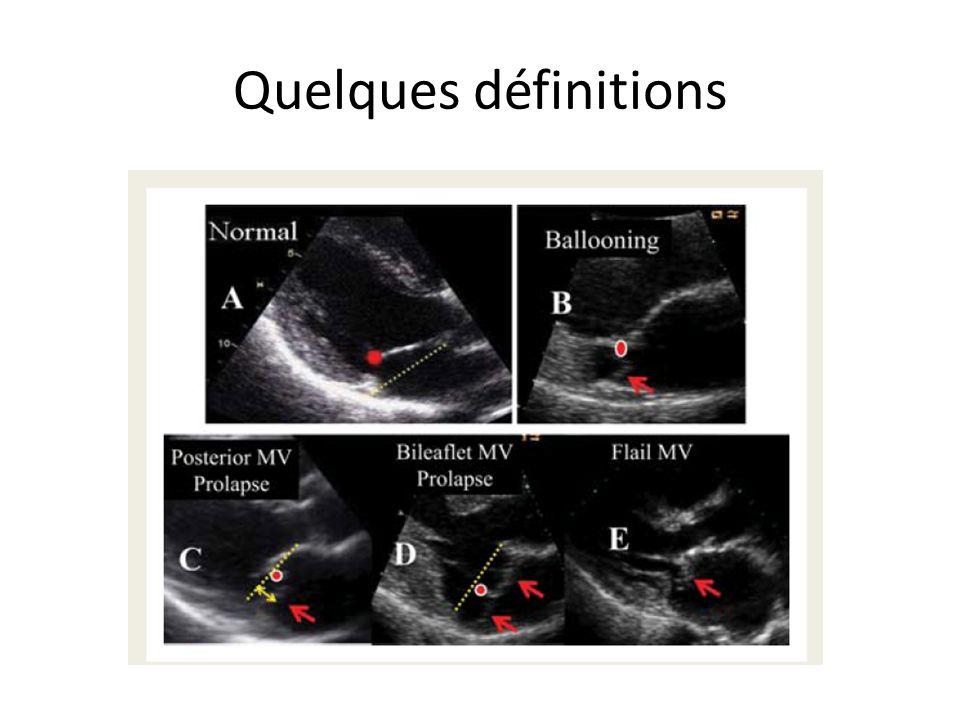 Anatomie échographique mitrale ETT P3 P1 P2 A2 A3 A1 4 apicales 4 cav, 3 cav,2 cav, 2cav extrème Pas de couleur en anatomie descriptive !!!.