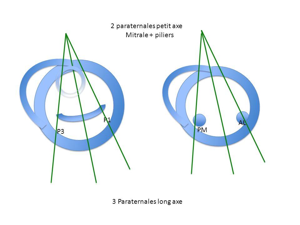P3 P1 PM AL 3 Paraternales long axe 2 paraternales petit axe Mitrale + piliers