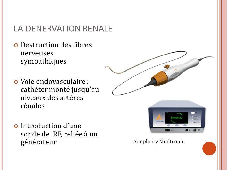 LA DENERVATION RENALE Destruction des fibres nerveuses sympathiques Voie endovasculaire : cathéter monté jusquau niveaux des artères rénales Introduct