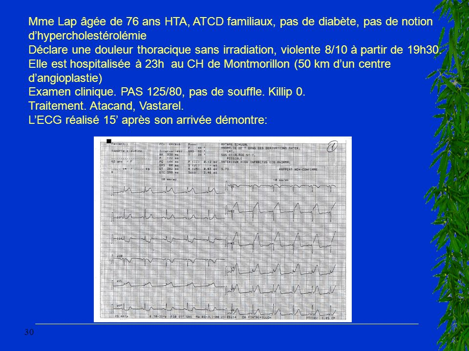 30 Mme Lap âgée de 76 ans HTA, ATCD familiaux, pas de diabète, pas de notion dhypercholestérolémie Déclare une douleur thoracique sans irradiation, vi