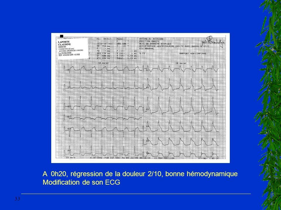 33 A 0h20, régression de la douleur 2/10, bonne hémodynamique Modification de son ECG