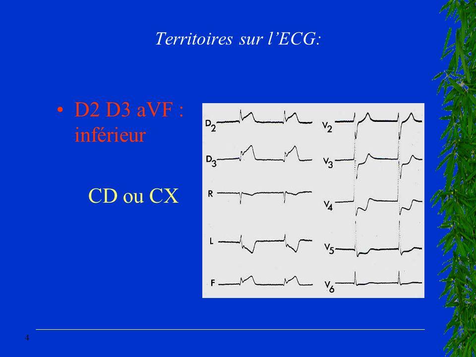 4 Territoires sur lECG: D2 D3 aVF : inférieur CD ou CX
