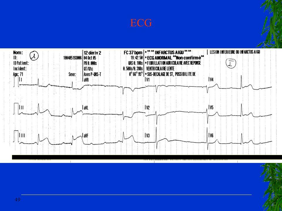 49 ECG