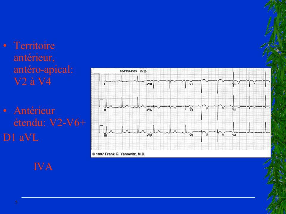 5 Territoire antérieur, antéro-apical: V2 à V4 Antérieur étendu: V2-V6+ D1 aVL IVA