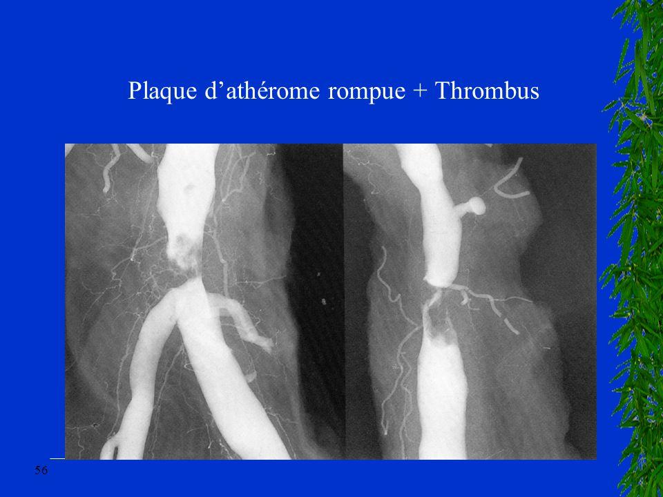 56 Plaque dathérome rompue + Thrombus